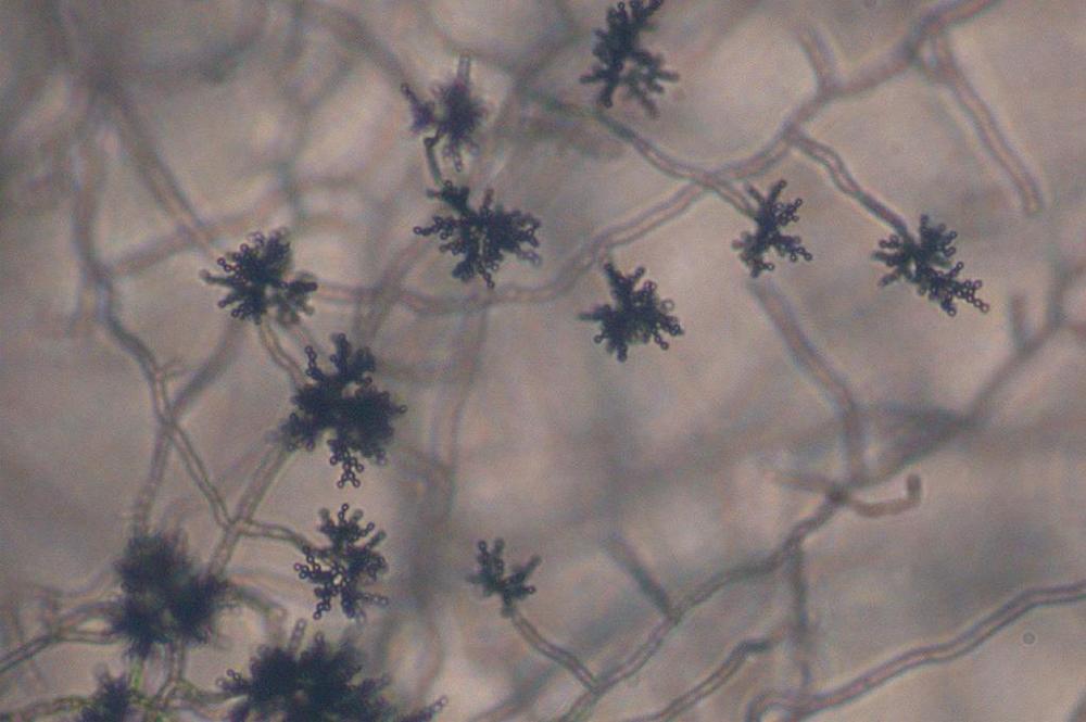 კლადოსპორიუმი- Cladosporium