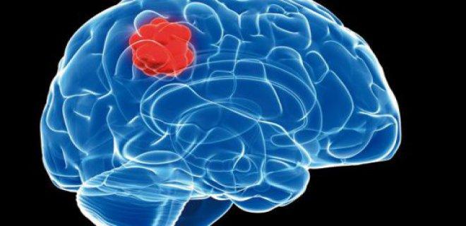 თავის ტვინის სიმსივნეები