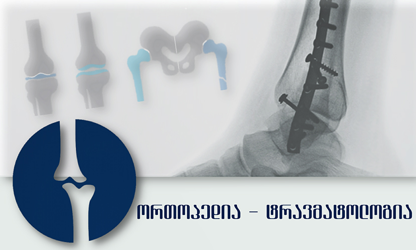 ორთოპედ - ტრავმატოლოგების უფასი კონსულტაციები აკად. ფ. თოდუას კლინიკაში