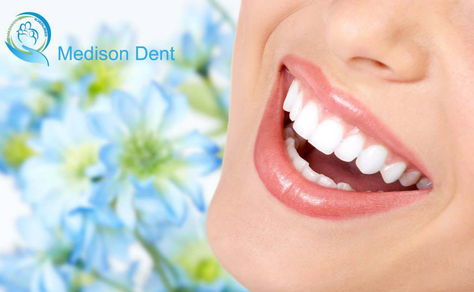 პროდუქტები, რომლებიც აჯანსაღებენ და ათეთრებენ კბილებს