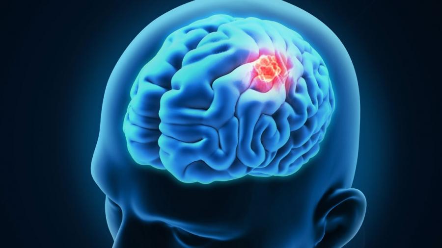 ანევრიზმა – სახიფათო სიჩუმე თავის ტვინში