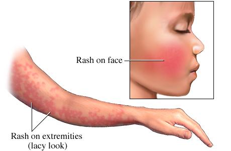 ინფექციური ერითემა-მეხუთე დაავადება
